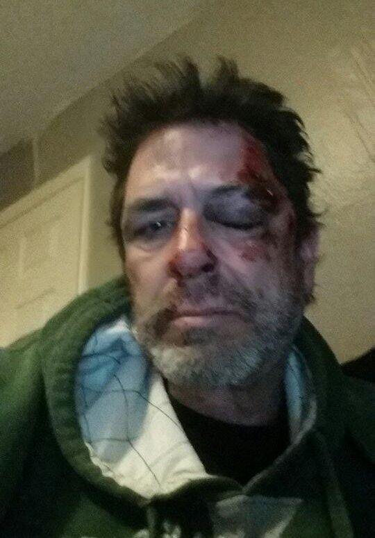 Evel Dick head injury